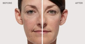 radiesse-before-after-pictures